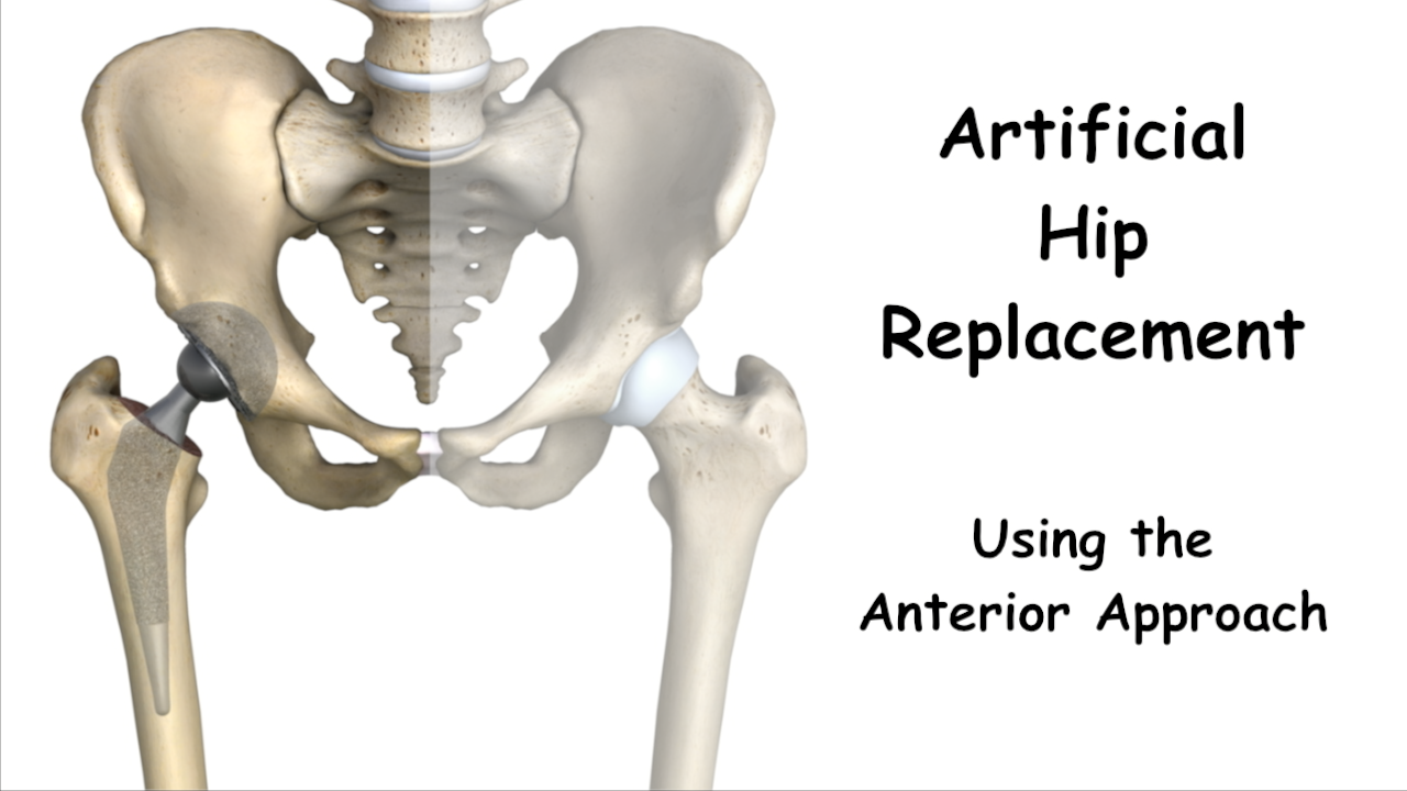 Benefits Of Hip Replacement Using The Direct Anterior Approach
