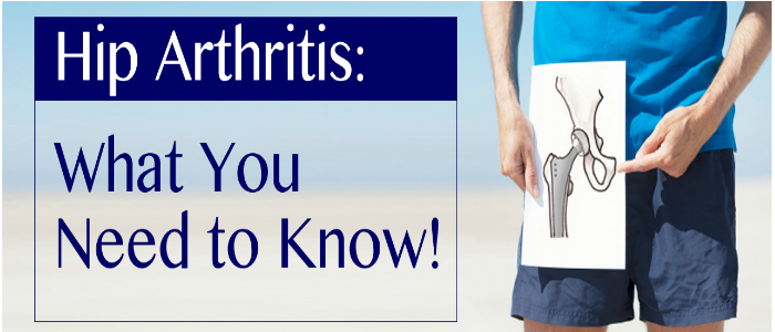 Aug-Meyer-Hip-Arthritis-header (1)
