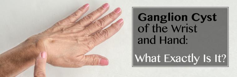Ganglion Cyst & hand