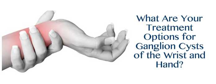 What Are Your Treatment Options for Ganglion Cysts of the Wrist and Hand?