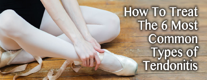 How To Treat The 6 Most Common Types of Tendonitis in Louisiana