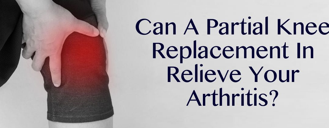 Can A Partial Knee Replacement In New Orleans Relieve Your Arthritis?