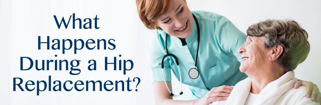 What Happens During a Hip Replacement in New Orleans?