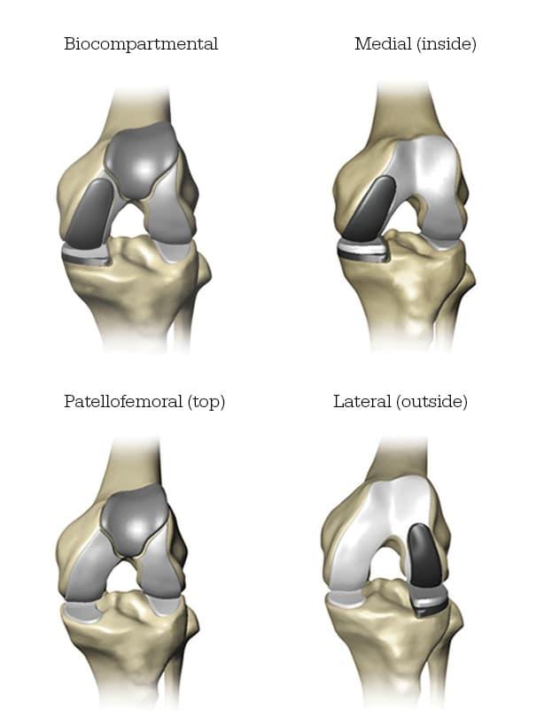 Total Knee Solution